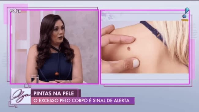 Câncer de Pele – Olga Bongiovanni na RedeTv!