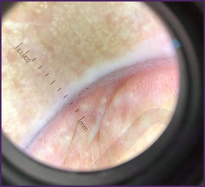 Microcirurgia para Grânulos de Fordyce