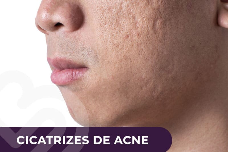 Cicatrize de acne
