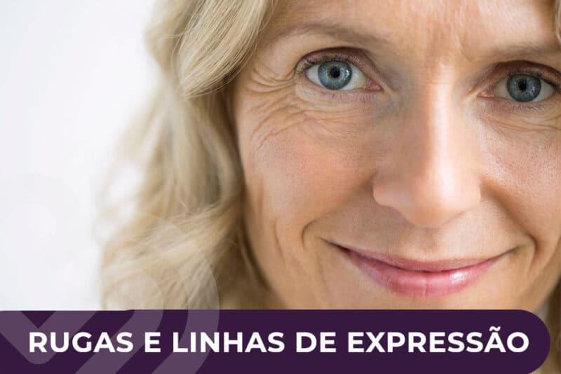 rugas-e-linhas-de-expressao-1