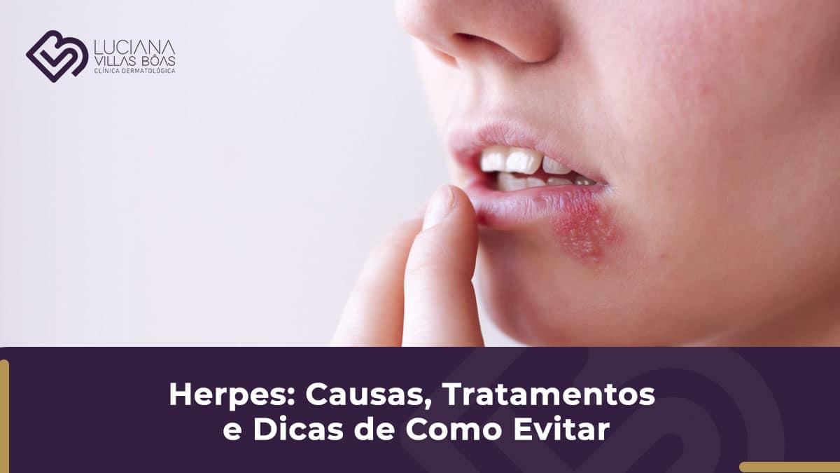 herpes tratamento de herpes