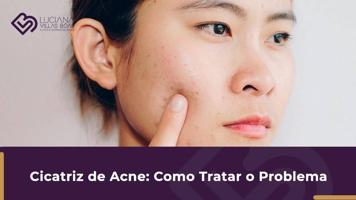cicatriz de acne tratamento para cicatriz de acne