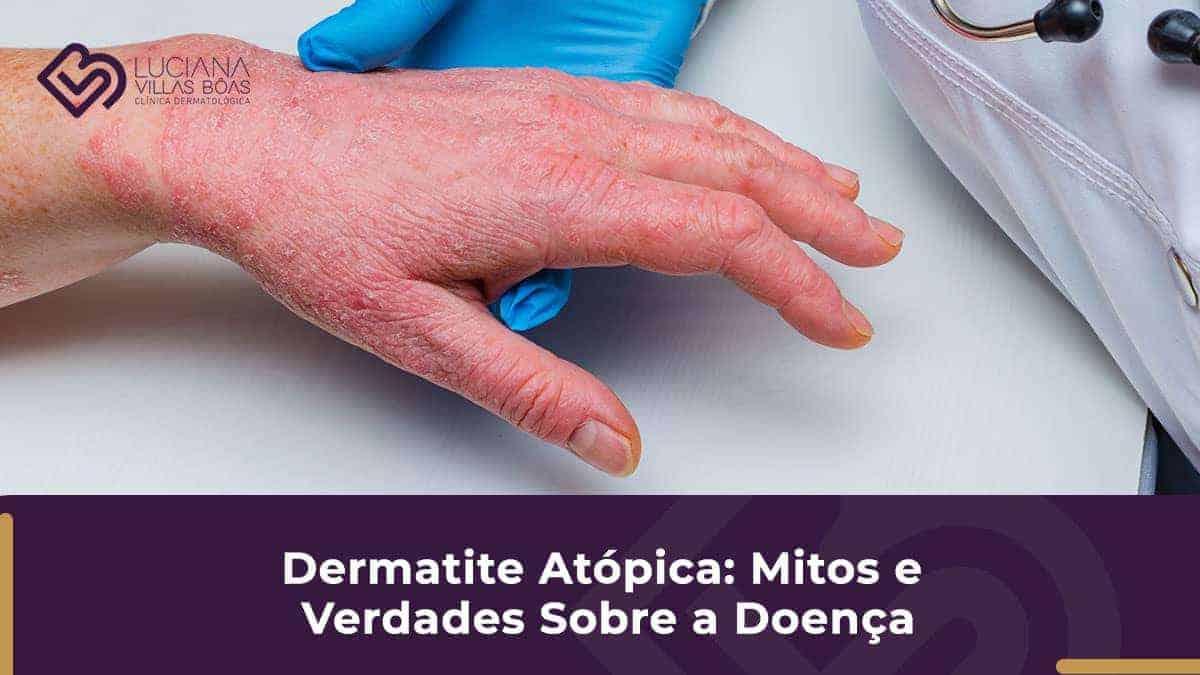 Dermatologista SP- dermatite-atopica-mitos-e-verdades-sobre-a-doenca
