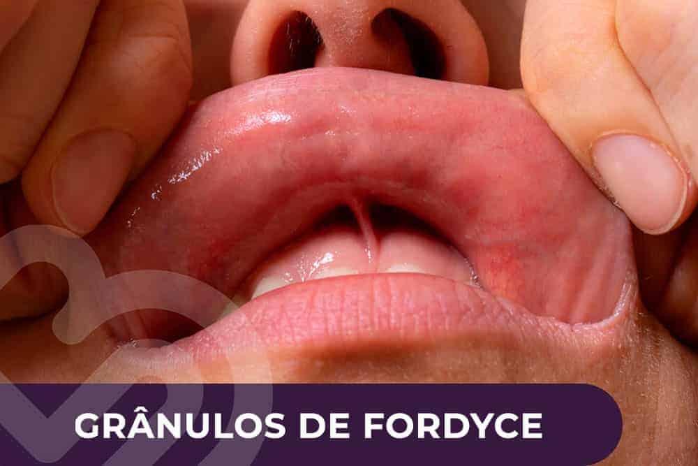 granulos-de-fordyce