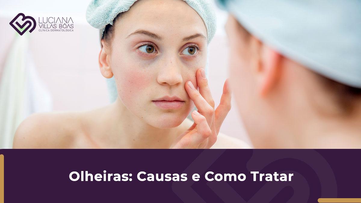 Tratamento para Olheiras: Quais são as causas e tratamentos?