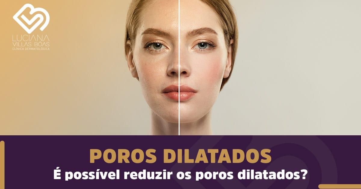 Poros dilatados - É possível reduzir os poros dilatados?