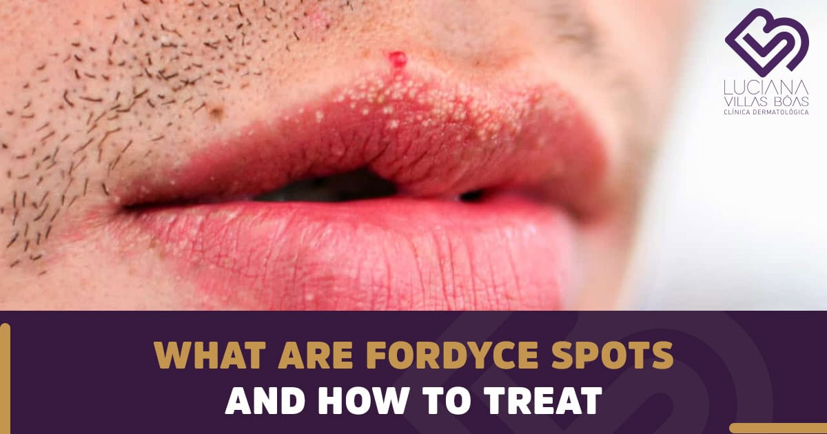 What are Fordyce Spots and How to Treat