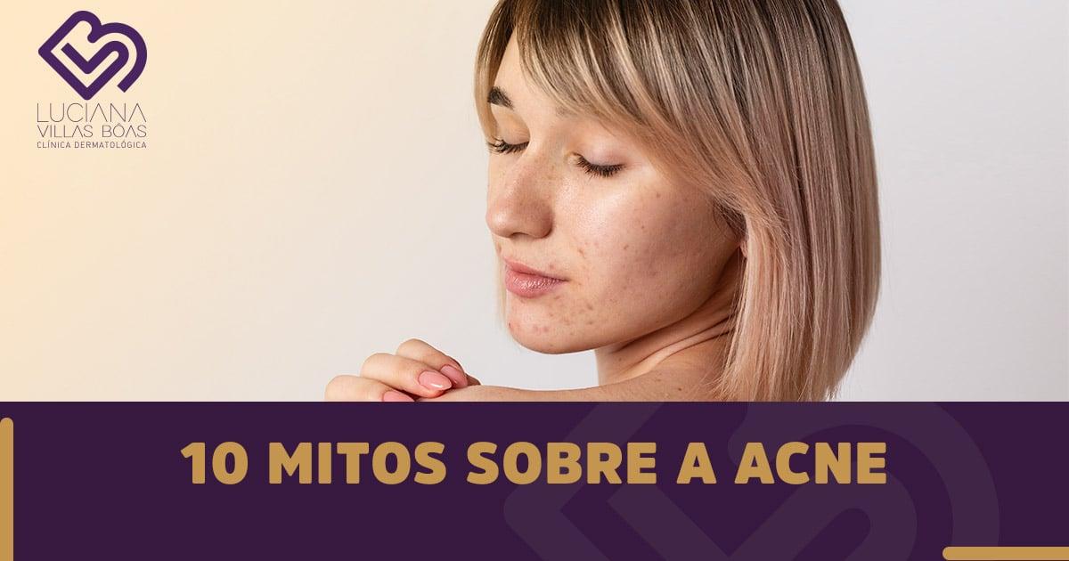 10 mitos sobre a Acne